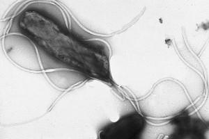 Helicobacter v podaní ultrašarlatána Bádateľa