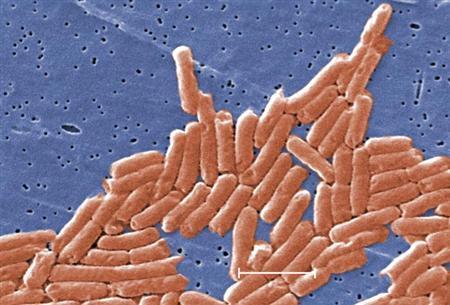 Mikrobiologická katastrofa